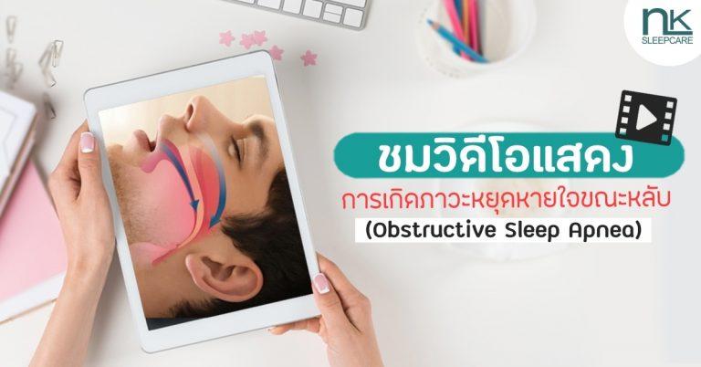 ชมวิดีโอแสดงการเกิดภาวะหยุดหายใจขณะหลับ (Obstructive Sleep Apnea)