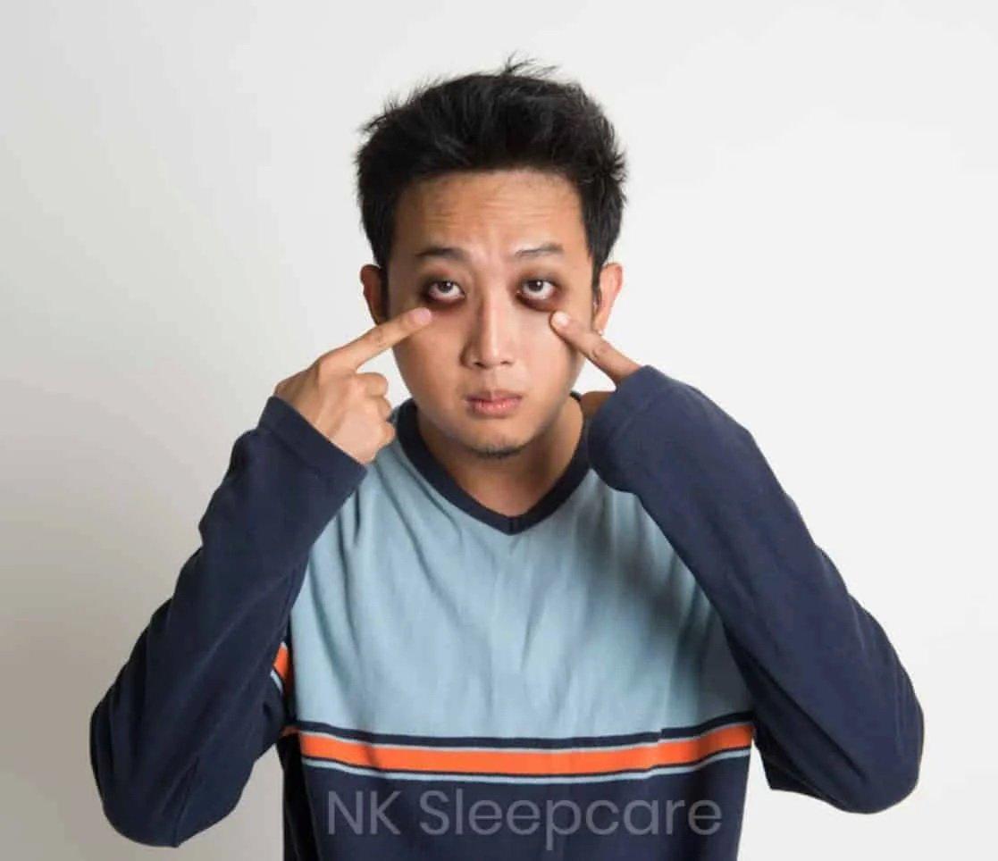 อาการนอนหลับไม่สนิท ขอบตาหมองคล้ำ