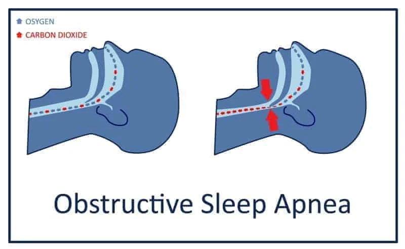 ภาวะหยุดหายใจขณะหลับ (Sleep Apnea) คืออะไร